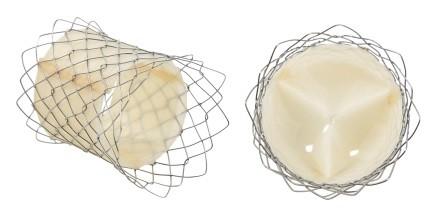 서울대병원이 개발한 자가확장형 폐동맥 인공심장판막과 스텐트