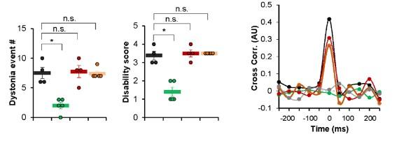 MDL1 투여에 의한 근긴장이상증 완화