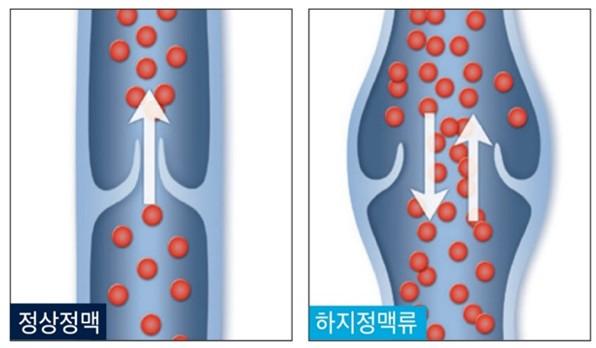 정상 정맥과 하지정맥류 발생 혈관 차이